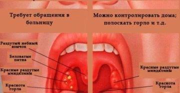 Почему появляется папиллома в горле и как с ней бороться