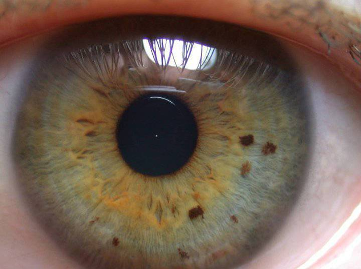 почему в глазах появляются черные точки