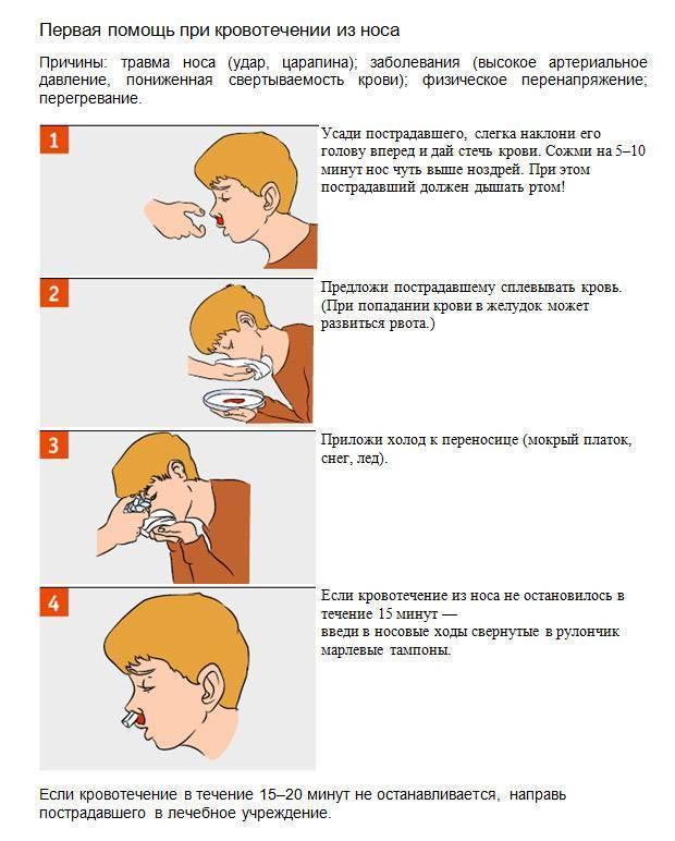 как остановить кровь из носа у ребенка в домашних условиях