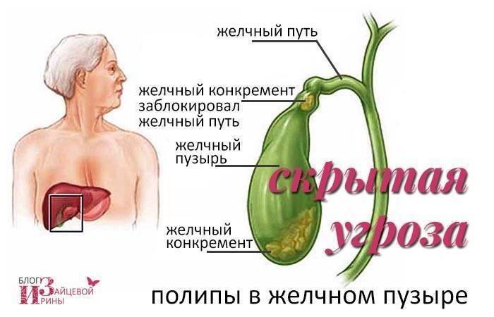 лечение полипов желчного пузыря народными средствами