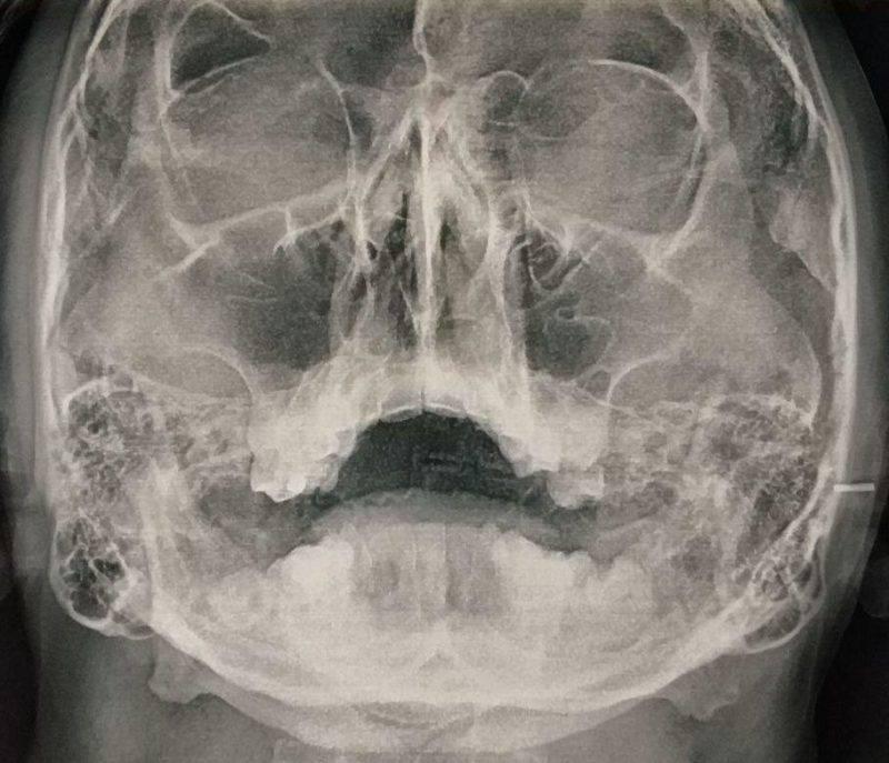 рентгенография носовых пазух