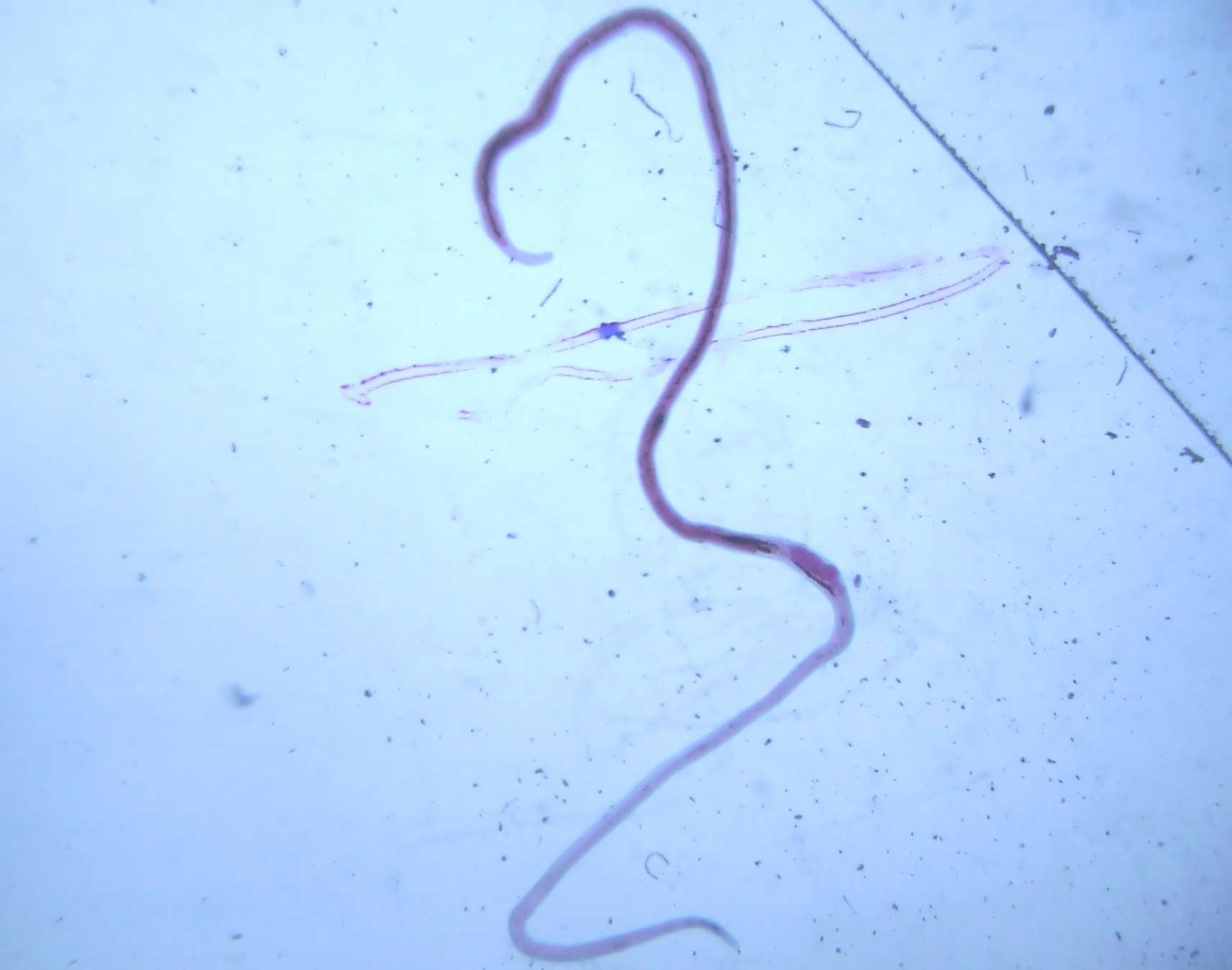 Мочеполовой шистосомоз