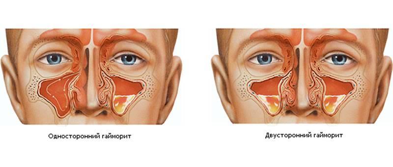 Как избавиться от хронического синусита навсегда