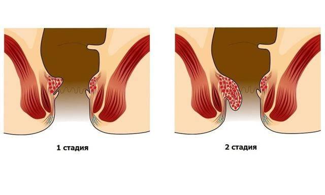 геморрой 2 стадия операция