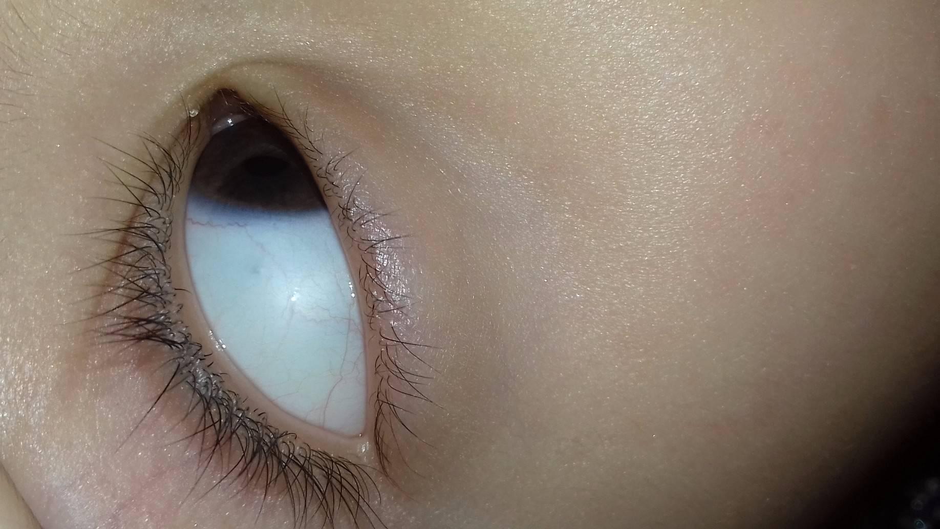 на белке глаза пятнышко