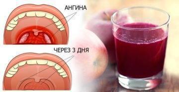 Красное горло и температура у ребенка: чем лечить воспаление?
