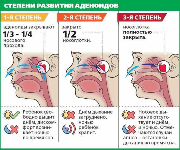 аденоиды у детей симптомы и лечение комаровский