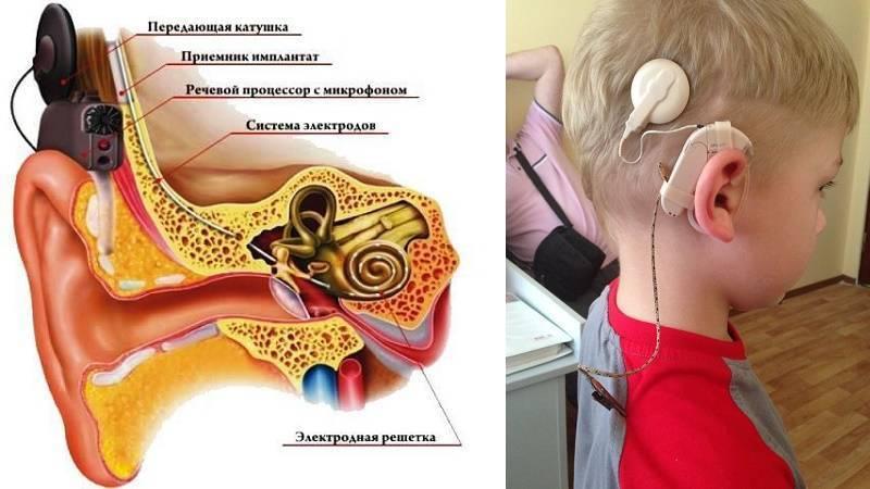 Как снять заложенность уха после отита? что делать, если ухо не слышит после отита?