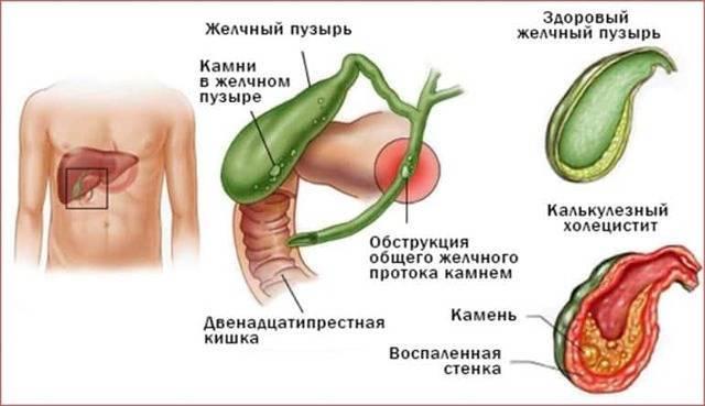 боли при желчном пузыре симптомы