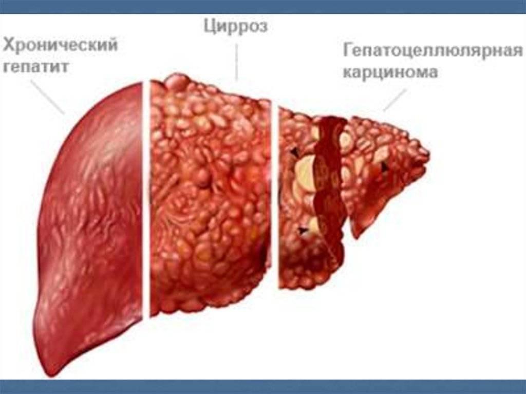 Хронический гепатит - лечение, препараты