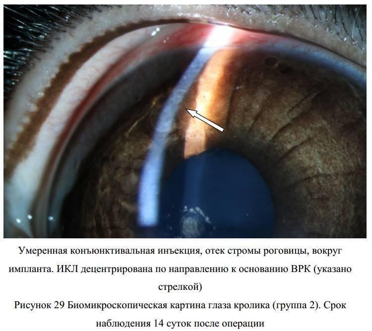 Возможное лечение при отеке роговицы глаза