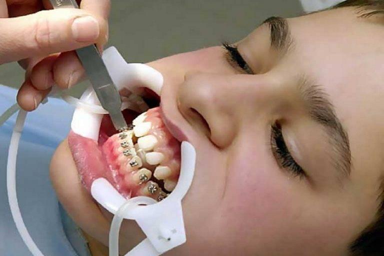 Брекеты - это больно? если болят зубы после установки брекетов - это нормально?