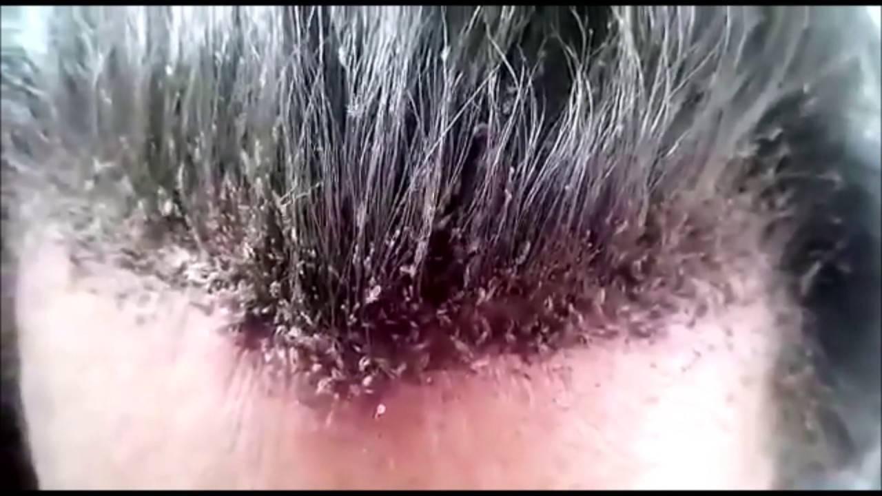 Подкожные вши у человека на теле: симптомы