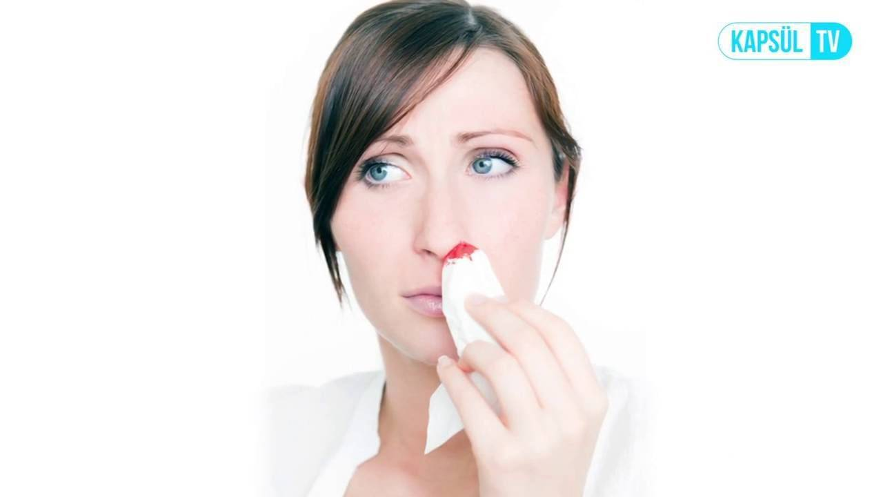 Виды носовых кровотечений – почему идет кровь из носа, и как её остановить?
