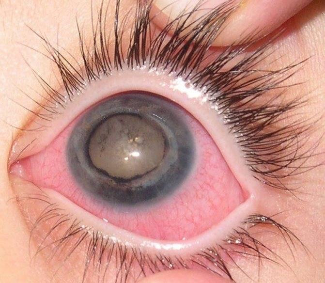 Пленка на глазах: причины, лечение и профилактика