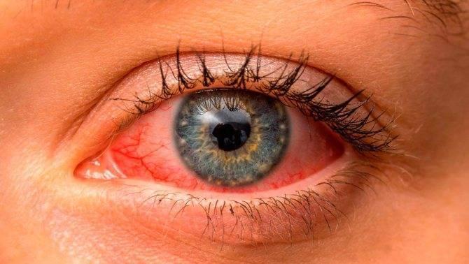 Какое время заразен человек, болевший коньюктивитом??? - конъюнктивит заразен или нет - запись пользователя ляля (pushislo) в сообществе здоровье - от трех до шести лет в категории офтальмология - babyblog.ru