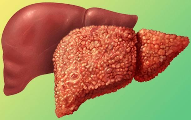 Реактивный гепатит: симптомы и лечение — симптомы