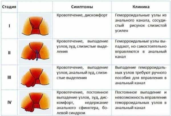 препараты при геморрое узлы