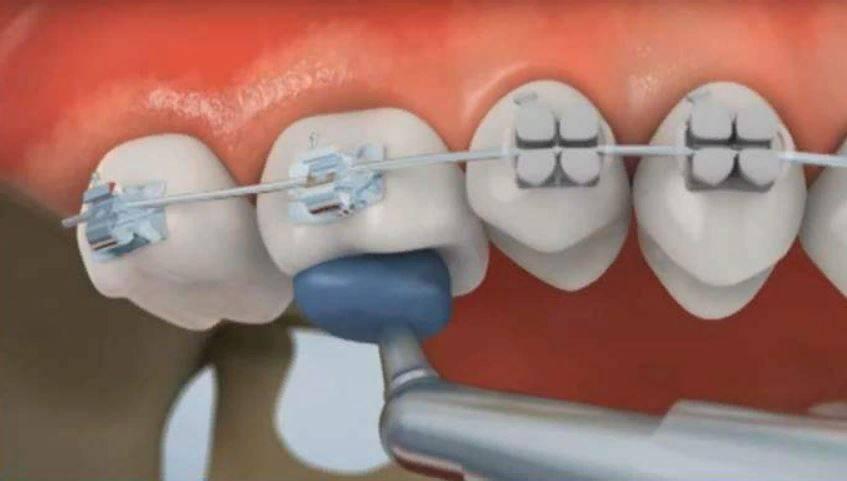 Можно ли делать мрт с брекетами и ретейнерами на зубах, разрешается ли рентген?