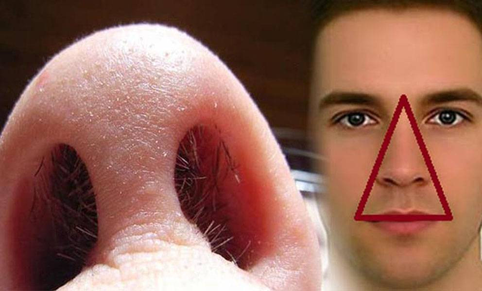 staphylococcus epidermidis в носу