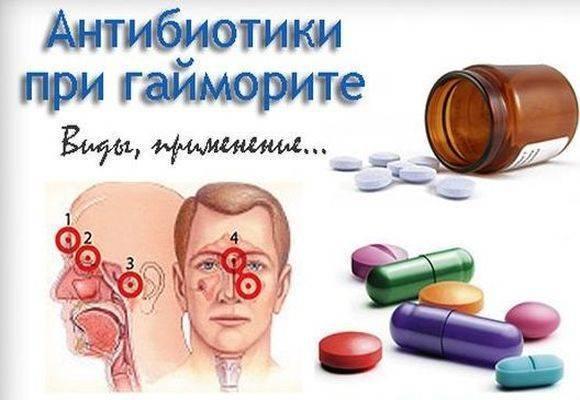 синусит лечение антибиотиками