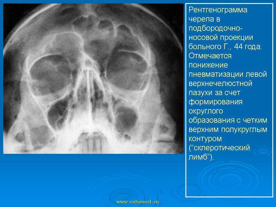 опухоль гайморовой пазухи симптомы