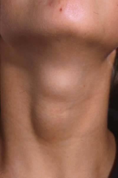 кисты щитовидной железы причины