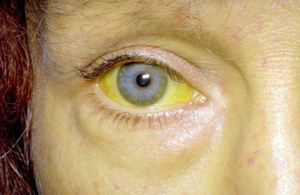 как заразиться желтухой