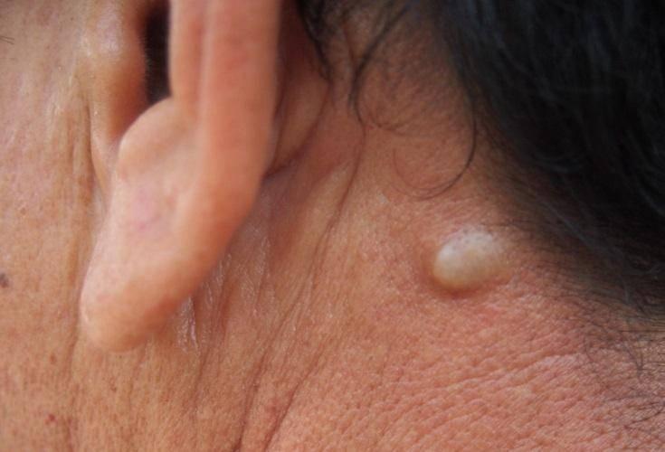 Жировик за ухом: причины и симптомы, методы лечения липомы