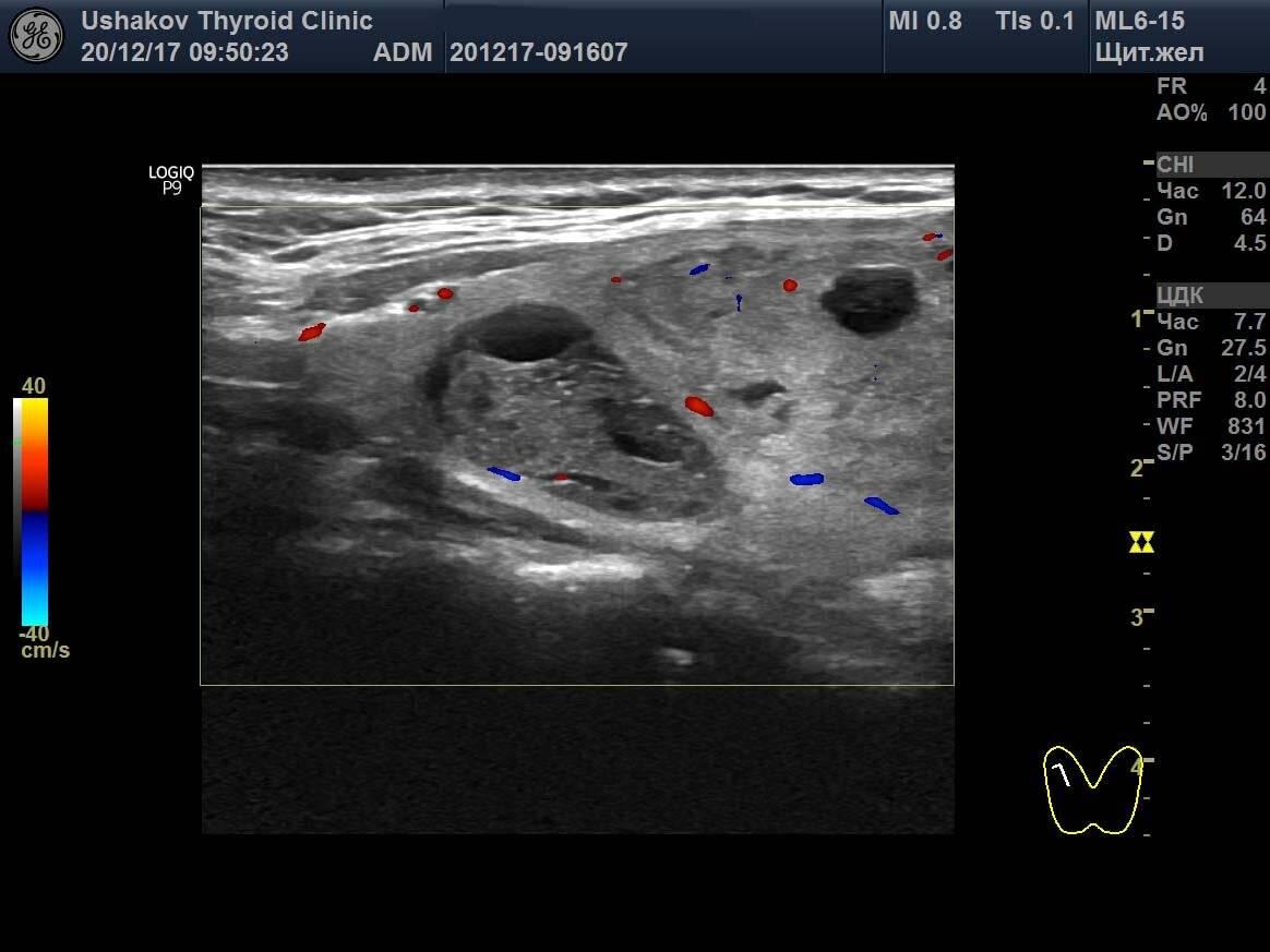 эхоструктура неоднородная щитовидной железы