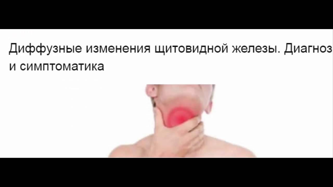 Токсическая аденома щитовидной железы: симптомы, причины, лечение, диагностика и прогноз