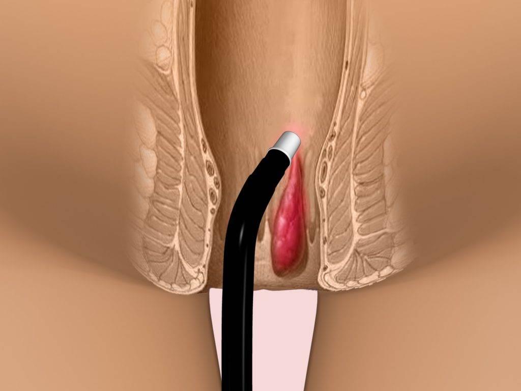 Причины и лечение тромбоза наружного геморроидального узла