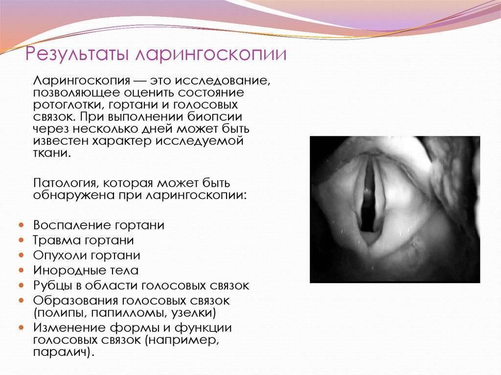 Парез гортани: причины, симптомы, диагностика и лечение