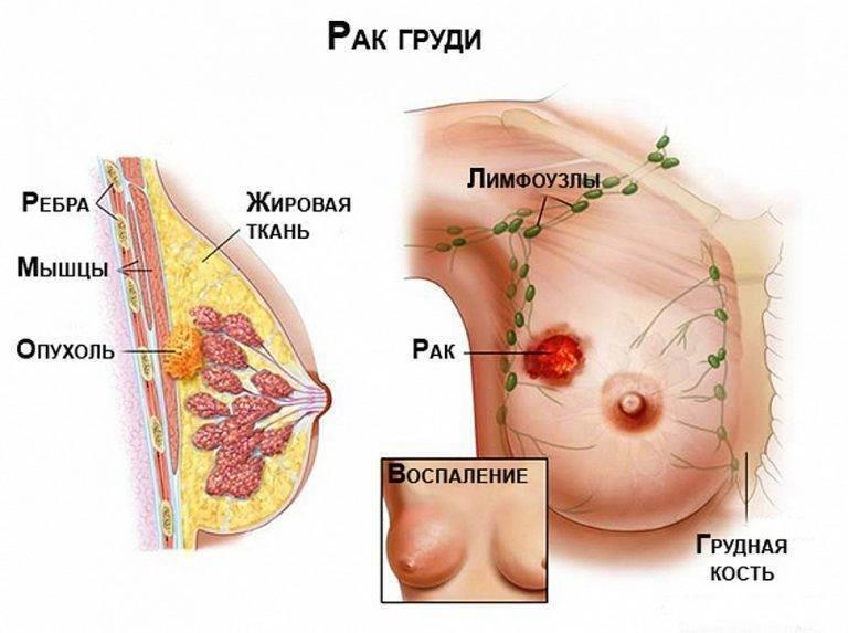 Увеличивается грудь и болит