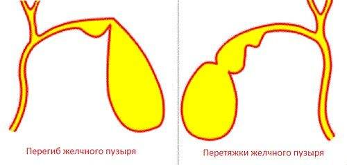 Перегиб желчного пузыря