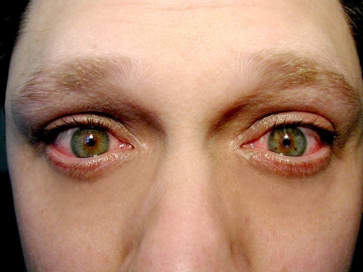 Лечение инфекционного конъюнктивита у взрослых