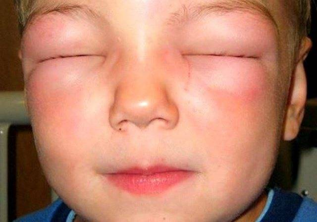 Аллергический отек носа без насморка лечение