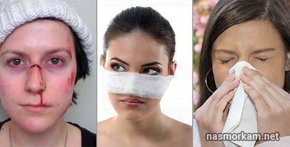 желтая жидкость из носа при наклоне головы