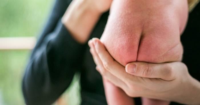 Пеленочный дерматит у новорожденных: причины, симптомы, лечение