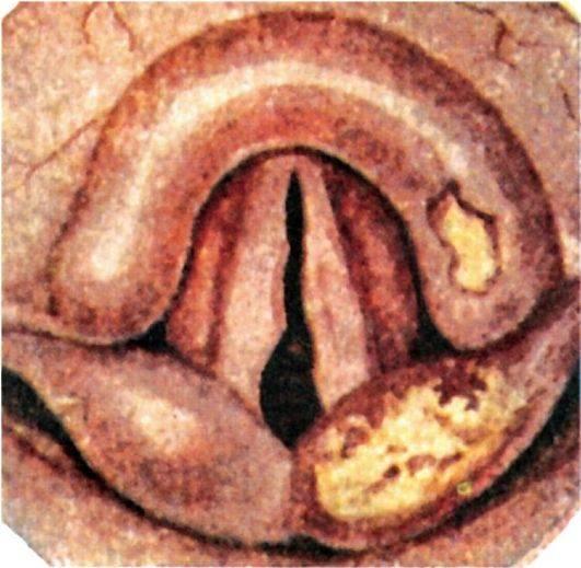 Болит горло и сифилис