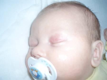 красное веко у новорожденного