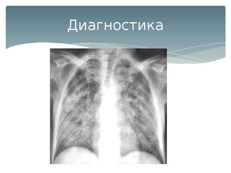 Особенности течения пневмоцистной пневмонии, ее диагностика и лечение