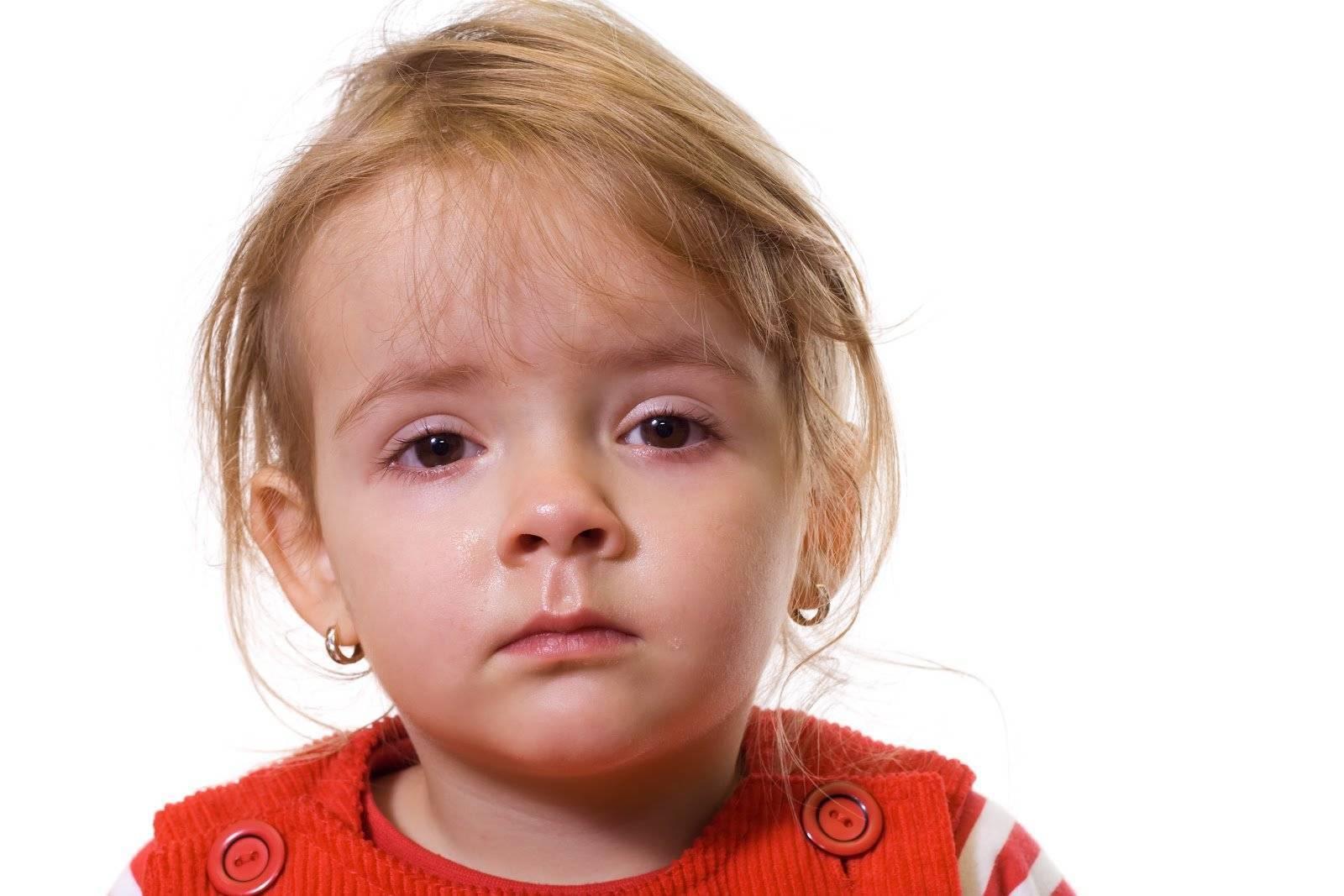 Мамин справочник: как лечить аллергический конъюнктивит у ребенка?
