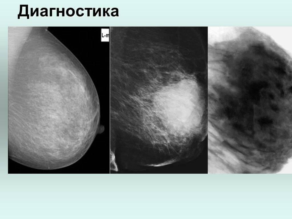 Эстрогенные опухоли. эстрогенозависимые опухоли: причины, методы лечения, последствия