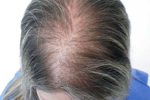 Как бороться с выпадением волос, вызванным плохой работой щитовидной железы?