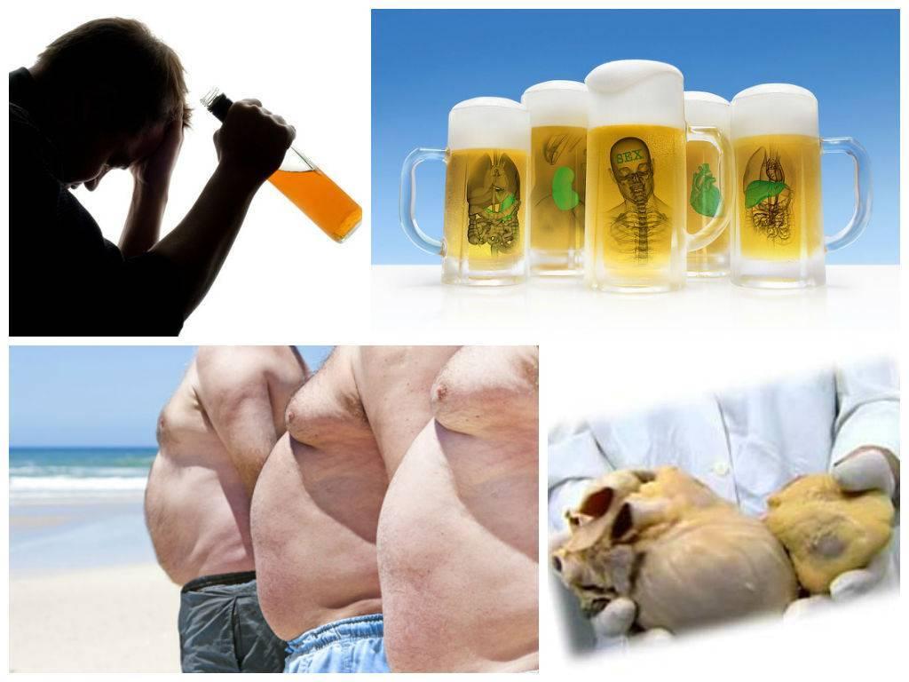 Пивной алкоголизм: признаки, особенности, последствия - лечение пивного запоя - алкомед