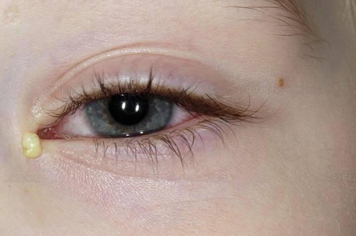 Белый налёт и выделения из глаз: что это такое, причины возникновения у взрослого, ребенка