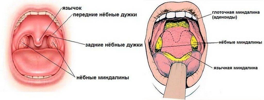 Аденоиды (увеличение миндалин)
