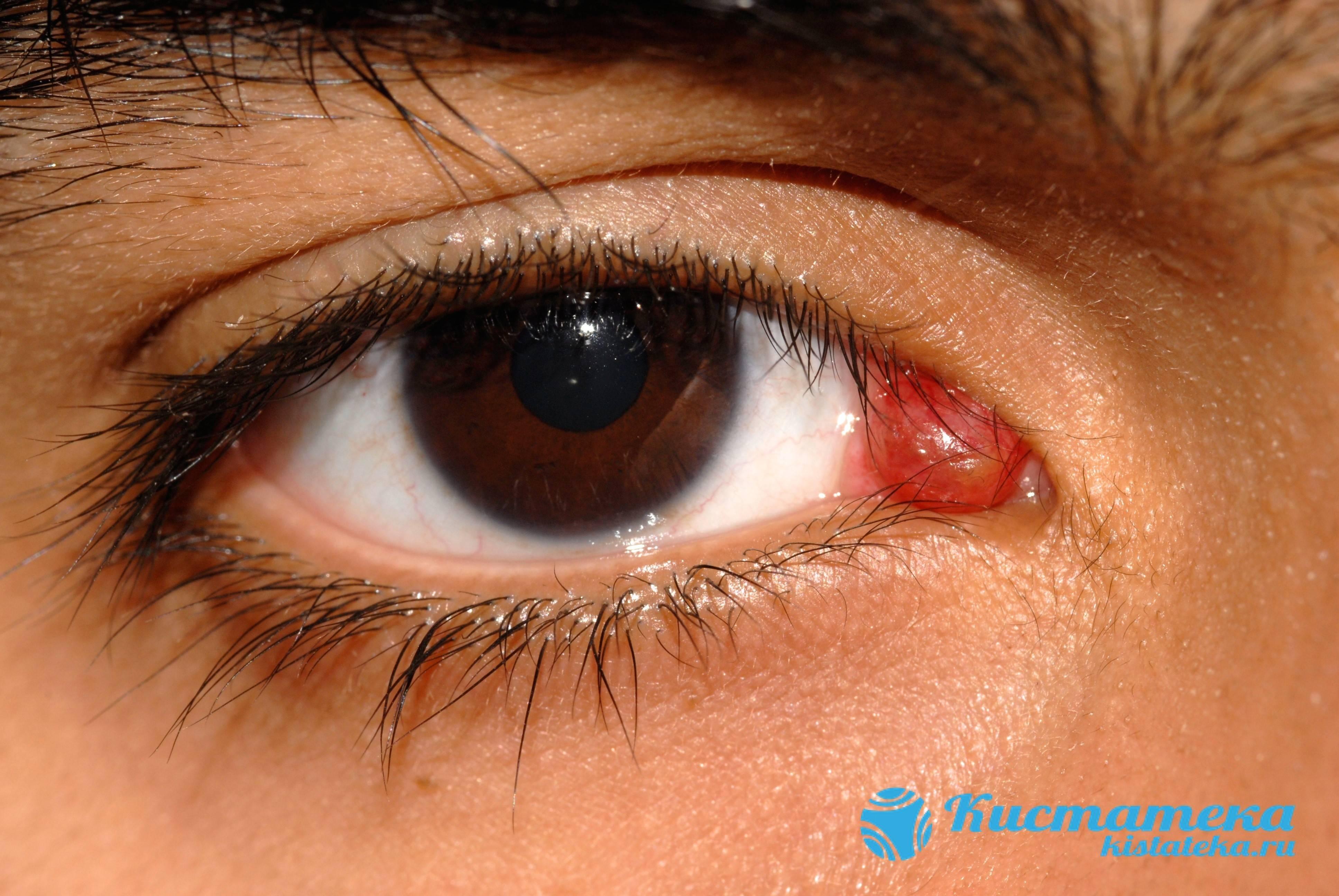 Боль в глазу под верхним веком: причины и лечение