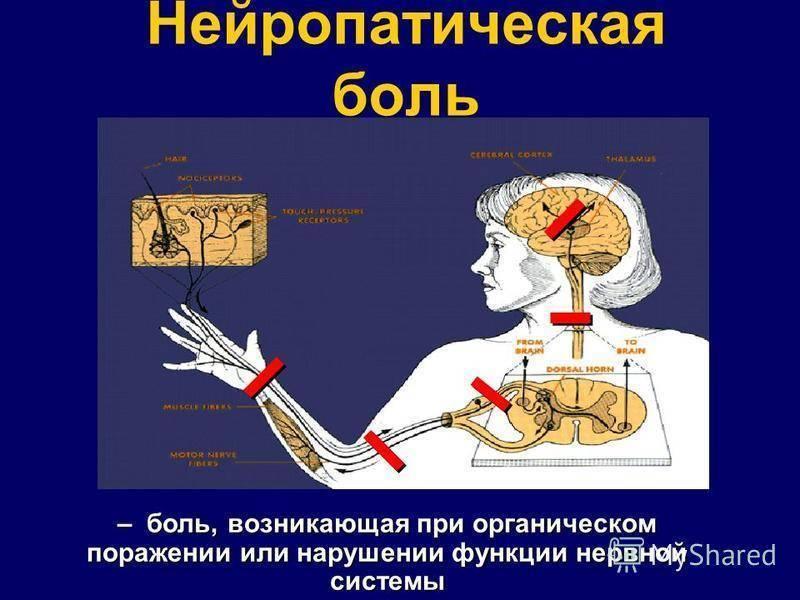 нейропатическая боль что это